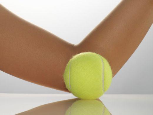 gomito-del-tennista